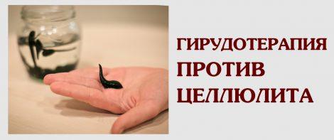 Гирудотерапия против целлюлита