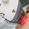 Фракционная лазерная обработка