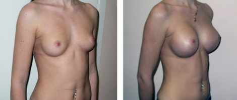 Маммопластика (увеличение груди)