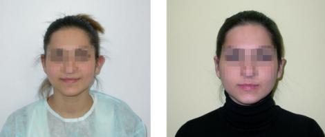Отопластика фото до и после операции