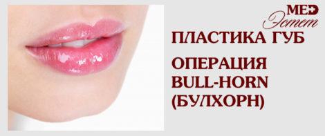 ОПЕРАЦИЯ BULL-HORN (БУЛЛХОРН) ОДИН ИЗ ВИДОВ ХЕЙЛОПЛАСТИКИ