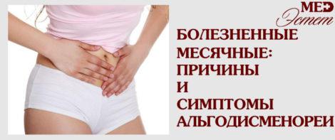 Альгодисменорея – болезненные месячные