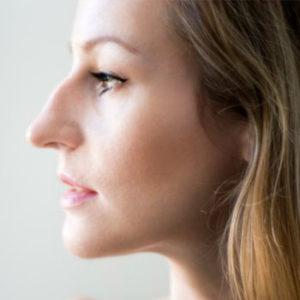 Почему собственный нос вызывает недовольство?